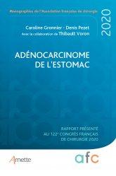 Dernières parutions sur Cancérologie, Adénocarcinome de l'estomac