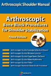 Dernières parutions sur Chirurgie, Arthroscopic bone block procedures for shoulder stabilization