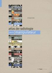 Souvent acheté avec Guide de radioanatomie pour le manipulateur Tome 1, le Atlas de radiologie pour le manipulateur