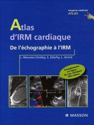 Souvent acheté avec Imagerie en coupes du coeur et des vaisseaux, le Atlas d'IRM cardiaque