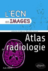 Dernières parutions sur L'ECN en fiches, Atlas de radiologie