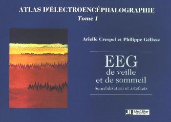 Souvent acheté avec Dictionnaire de neurologie français-anglais, le Atlas d'électroencéphalographie Tome 1 EEG de veille et de sommeil