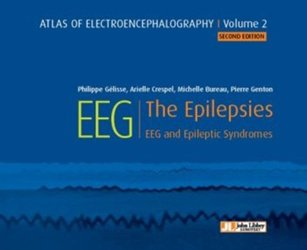 Dernières parutions sur Epilepsies, Atlas of electroencephalography Volume 2 : The Epilepsies