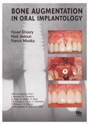 Souvent acheté avec Chirurgie osseuse préimplantaire, le Bone Augmentation in Oral Implantology