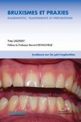 Dernières parutions sur Implantologie, Bruxismes et praxies