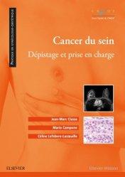 Dernières parutions sur Cancers gynécologiques, Cancer du sein