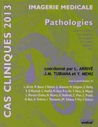 Cas cliniques 2013