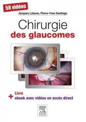 Dernières parutions sur Chirurgie ophtalmologique, Chirurgie des glaucomes