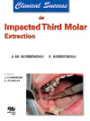 Dernières parutions dans clinical success, Clinical Success in Impacted Third Molar Extraction