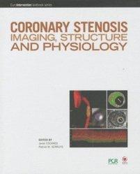 Souvent acheté avec Artériopathies des membres, le Coronary stenosis imaging, structure and physiology