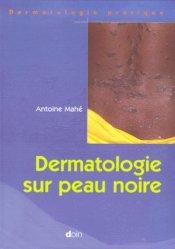 Souvent acheté avec Urgences pédiatriques, le Dermatologie sur peau noire