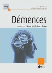 Dernières parutions dans Traité de neurologie, Démences