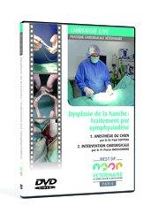 Dernières parutions sur Anesthésie - Chirurgie, Dysplasie de la hanche