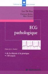 Dernières parutions dans Cardiologie pratique, ECG pathologique