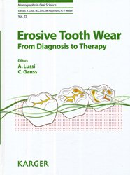 Dernières parutions dans Monographs in Oral Science, Erosive Tooth Wear