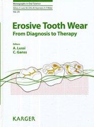 Dernières parutions sur Endodontie, Erosive Tooth Wear