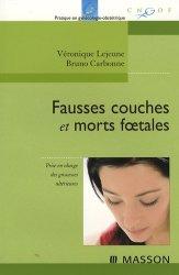 Dernières parutions dans Pratique en gynécologie-obstétrique, Fausses couches et morts foetales