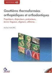 Dernières parutions dans Repères, Gouttières thermoformées orthopédiques et orthodontiques