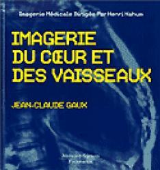 Dernières parutions dans Imagerie médicale, Imagerie du coeur et des vaisseaux