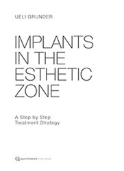 Dernières parutions sur Publications en anglais - English books, Implants in the Esthetic Zone
