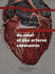 Dernières parutions dans Imagerie médicale, Imagerie du coeur et des artères coronaires