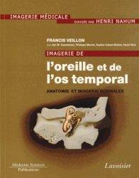 Dernières parutions sur Imagerie cervico-faciale et ORL, Imagerie de l'oreille et de l'os temporal Volume 1