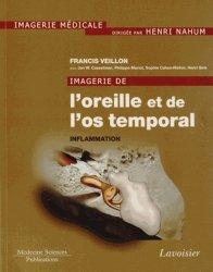 Dernières parutions dans Imagerie médicale, Imagerie de l'oreille et de l'os temporal Volume 2