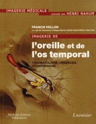 Dernières parutions dans Imagerie médicale, Imagerie de l'oreille et de l'os temporal Volume 3