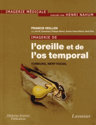 Dernières parutions dans Imagerie médicale, Imagerie de l'oreille et de l'os temporal Volume 4