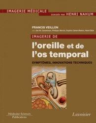 Dernières parutions sur Imagerie cervico-faciale et ORL, Imagerie de l'oreille et de l'os temporal Volume 6