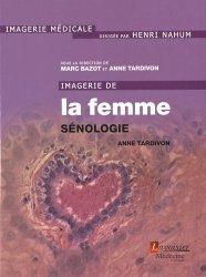 Dernières parutions sur Imagerie gynécologique, Imagerie de la femme : Sénologie