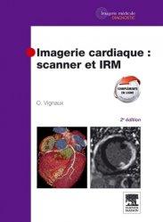 Souvent acheté avec Imagerie des accidents vasculaires cérébraux et médullaires, le Imagerie cardiaque : scanner et IRM