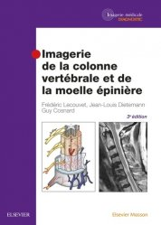 Dernières parutions sur Imagerie des membres et du rachis, Imagerie de la colonne vertébrale et de la moelle épinière
