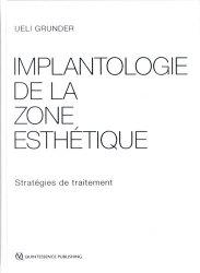 Implantologie de la zone esthétique