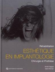 Dernières parutions sur Implantologie, Implantologie en Secteur Esthétique