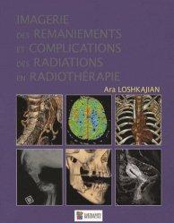 Dernières parutions sur Radiologie - Scanner, Imagerie des remaniements et complications des radiations en radiothérapie