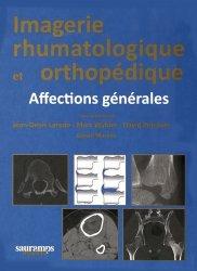 Souvent acheté avec Guide pratique du monitorage en réanimation et urgence, le Imagerie rhumatologique et orthopédique