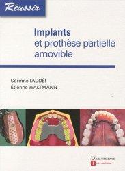 Souvent acheté avec Les attachements en prothèse, le Implants et prothèse partielle amovible