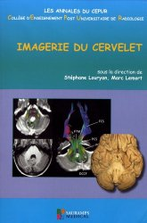 Dernières parutions sur Imagerie cervico-faciale et ORL, Imagerie du cervelet
