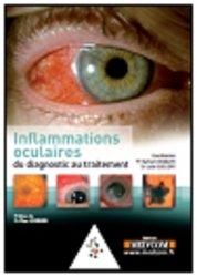 Souvent acheté avec Manuel de l'opticien, le Inflammations oculaires du diagnostic au traitement