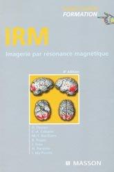 Dernières parutions dans Imagerie Médicale Formation, IRM