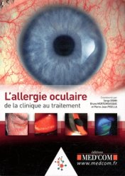 Dernières parutions dans , L'allergie oculaire : de la clinique au traitement https://fr.calameo.com/read/005370624e5ffd8627086