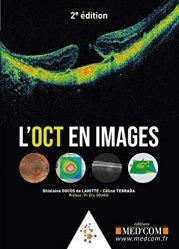 Dernières parutions sur Ophtalmologie, L'OCT en images
