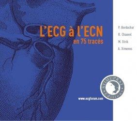 Dernières parutions sur ECG, L'ECG à l'ECN