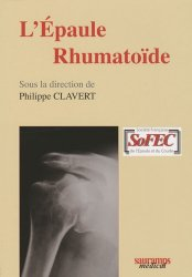 Dernières parutions sur Membre supérieur, L'Épaule Rhumatoïde