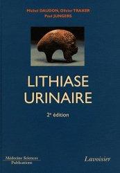 Souvent acheté avec Comprendre et utiliser les statistiques dans les sciences de la vie, le La lithiase urinaire