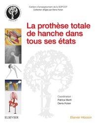 Dernières parutions dans Cahiers d'enseignement de la SOFCOT, La prothèse totale de hanche dans tous ses états