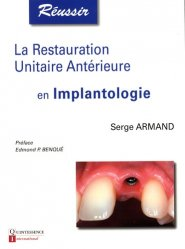 Dernières parutions dans Réussir, La restauration Unitaire Antérieure en Implantologie