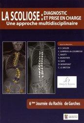 Dernières parutions sur Membre supérieur, La scoliose : Diagnostic et prise en charge - Une approche multidisciplinaire
