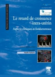 Dernières parutions dans Pratique en gynécologie-obstétrique, Le retard de croissance intra-utérin